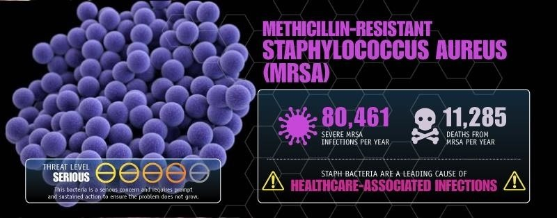 Mysteriously, a Huge Study Finds a Drop in Antibiotic Resistant (MRSA) Infections