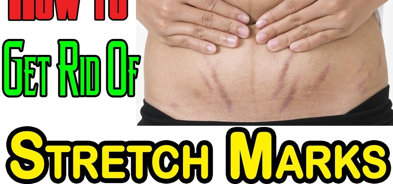 How to Get Rid of Stretch Marks | 5 Simple Natural Ways to