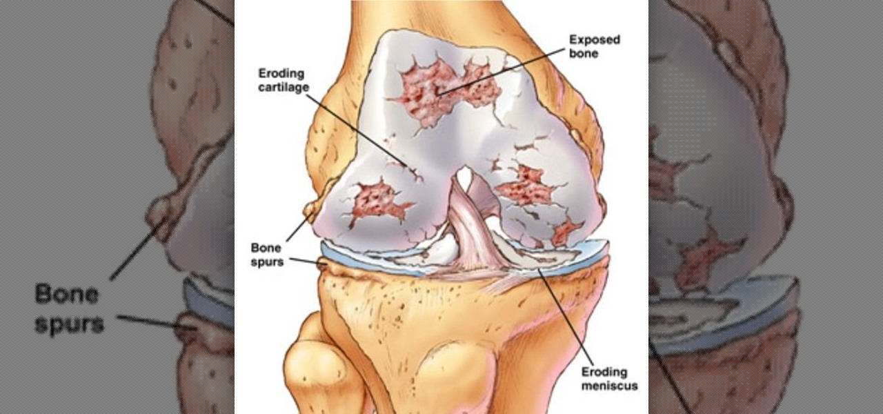 How Could Stem Cell Treat Osteoarthritis