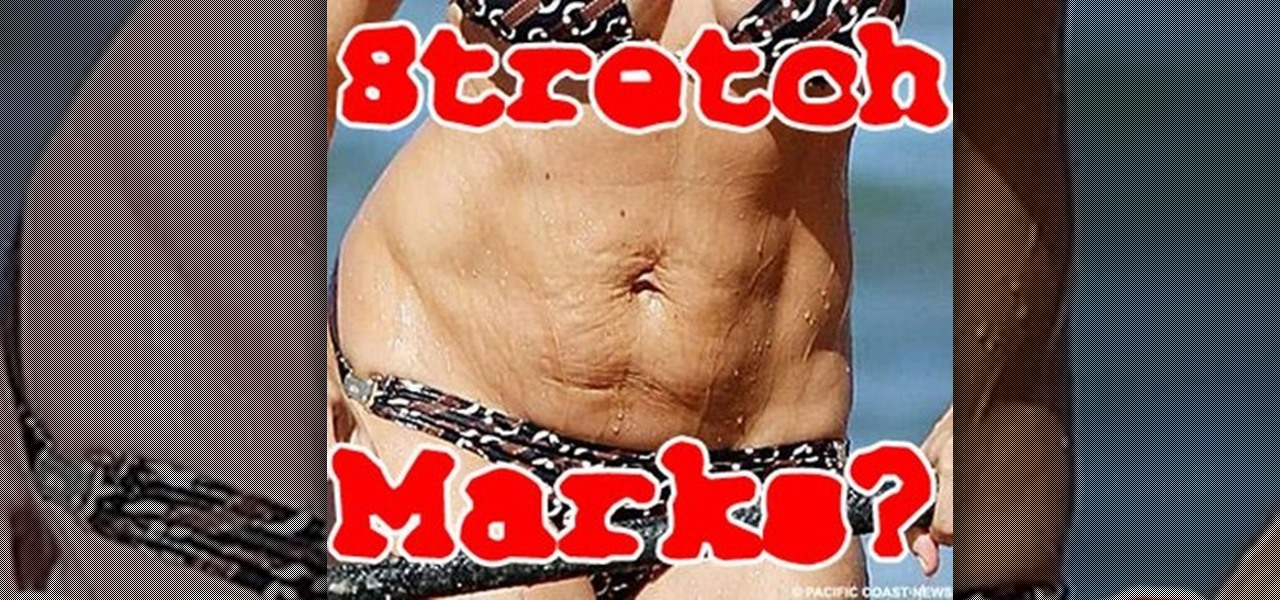 How to get rid of stretch marks with olive oil shea for Can i take a shower after getting a tattoo