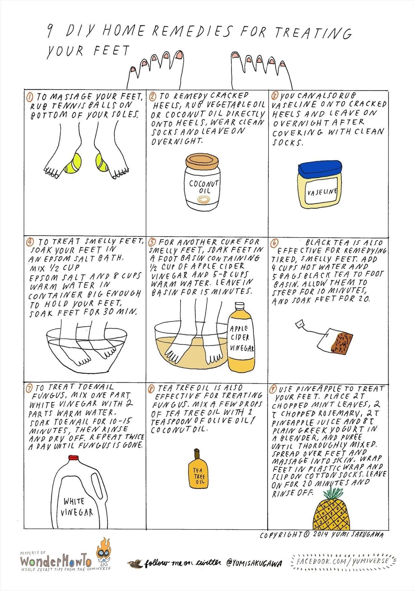 9 Home Remedies for Treating Common Feet Problems