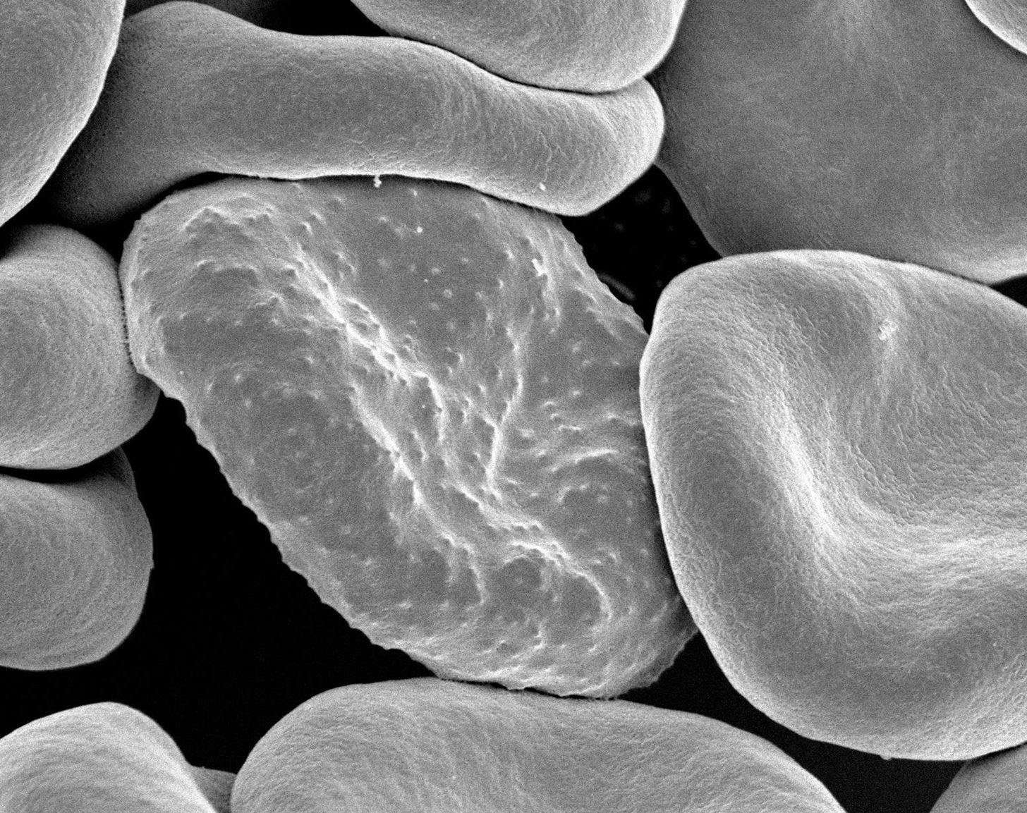 Genetically-Modified Parasites Could Save People from Malaria