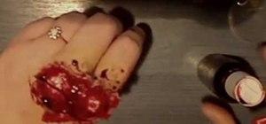 exposed knuckle injury