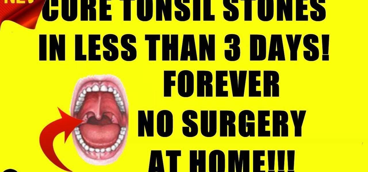 Yoga for tonsil stones