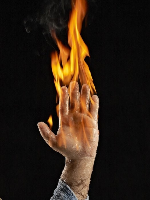 Do Not Try This At Home: The Human Torch