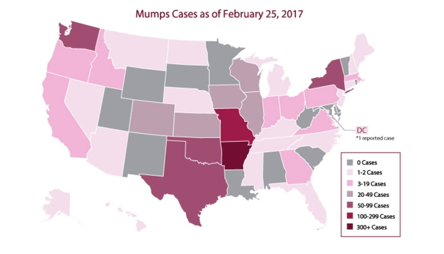 Mumps Outbreaks Hit 3 Different US College Campuses; Cases More Than Double Last Year at This Time