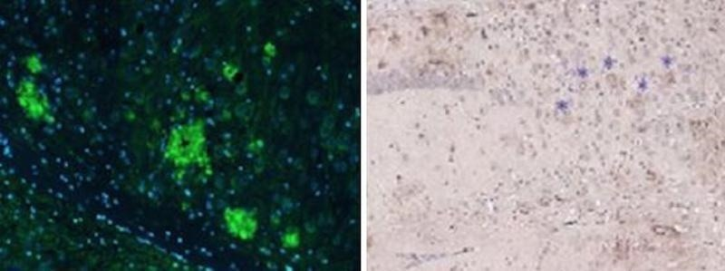 New Vaccine Takes Down Toxic Plaques Associated with Alzheimer's