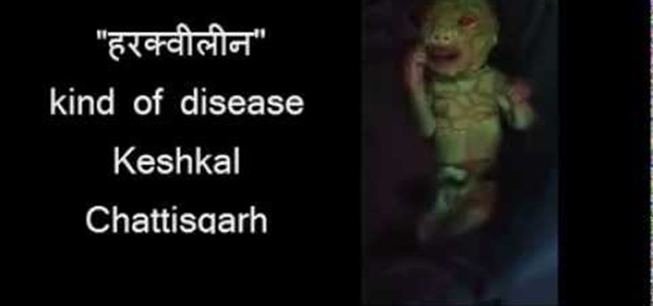 Kind of Unique Alien Baby Born in Chattishgarh! Its Green ...