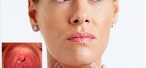 Treat sore throats with or without over-the-counter medication