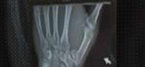 Diagnose and treat a Bennett's fracture