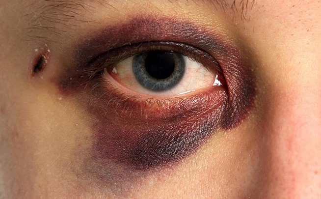 Makeup Ideas bruise makeup : Pin by Meesh on Cuts and Bruises Makeup : Pinterest : Domestic ...