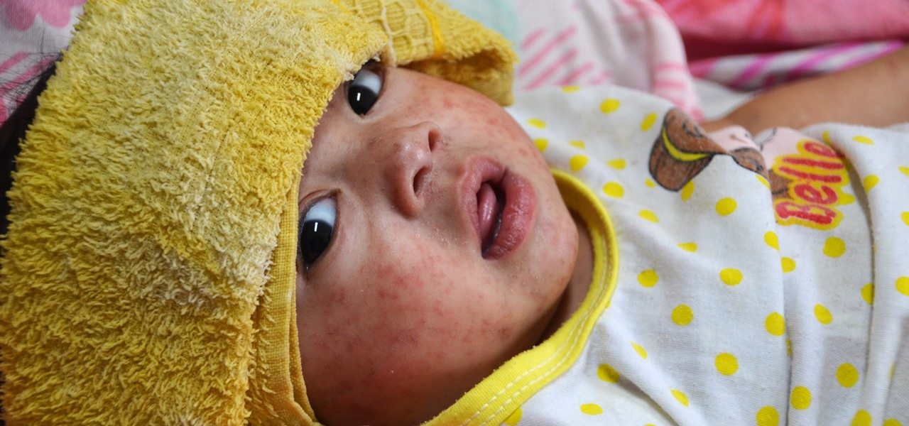 Despite Effective Vaccine, Measles Still Threaten Worldwide