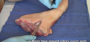 Perform a vertical mattress suture on a patient