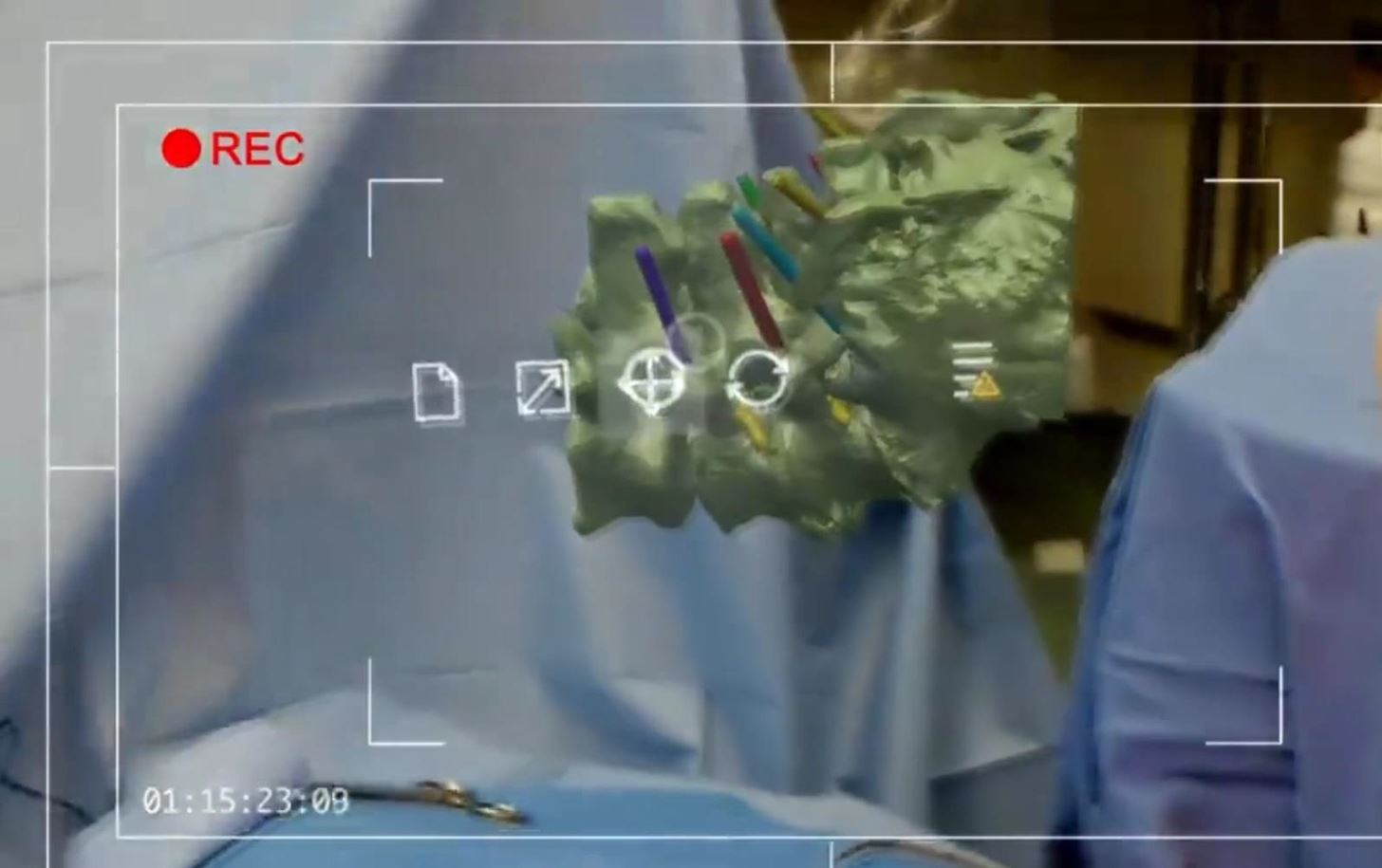 Two Doctors Simplify Spinal Surgery with the HoloLens