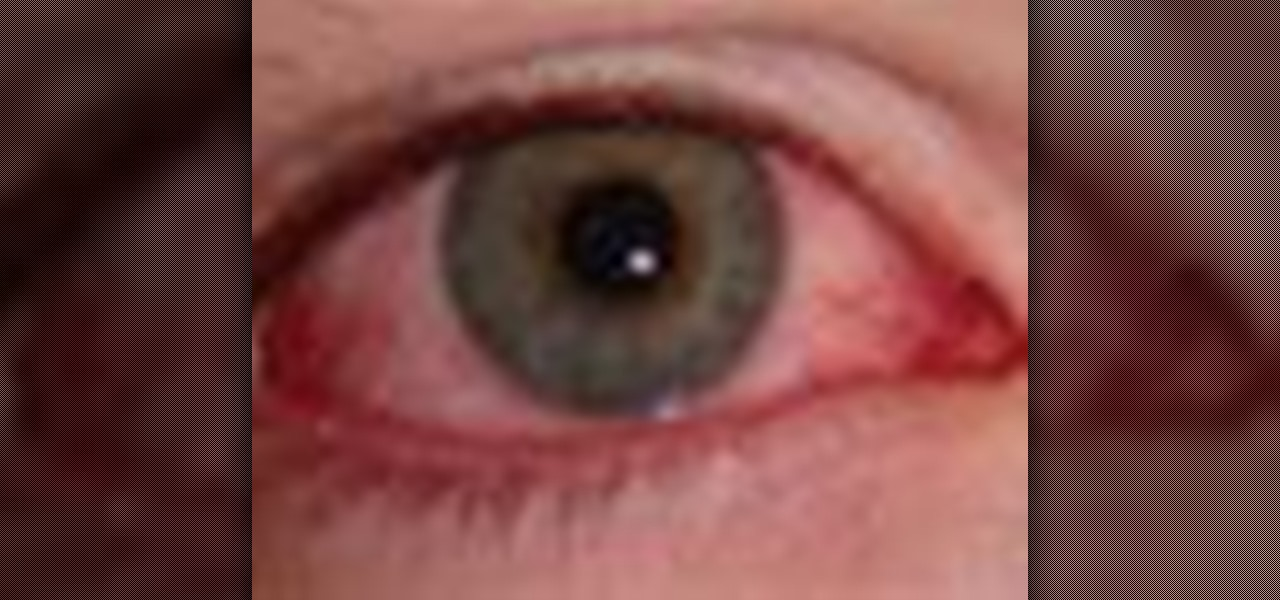 Homeopathic Pink Eye Treatment For Dogs