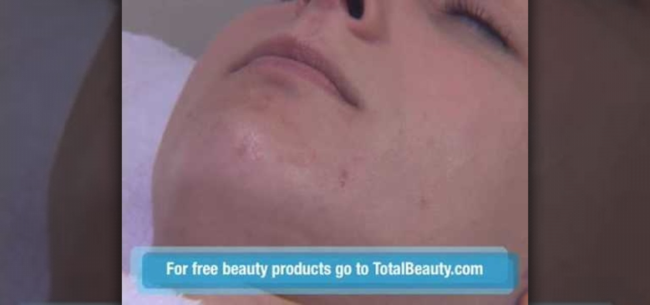 Extraction Tools For Blackheads How to Extract a Blackhead