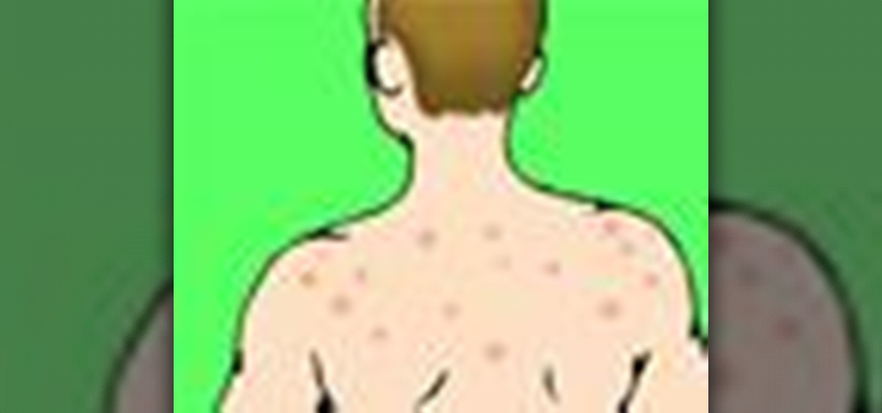 How To Get Rid Of Bacne Naturally