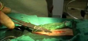 Perform a simple interrupted suture in surgery