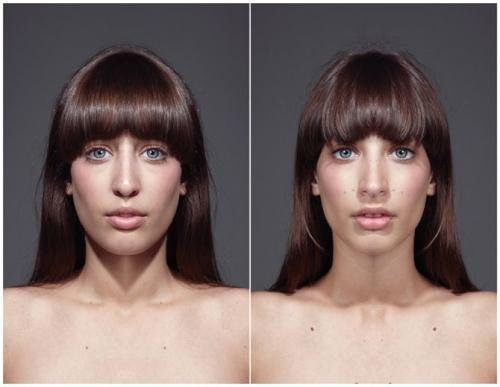 How To Measure Facial Symmetry 74