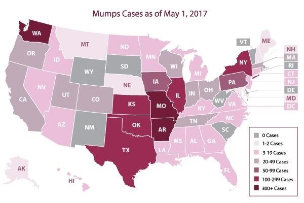 Mumps Outbreak Leads to Health Alert for Boston