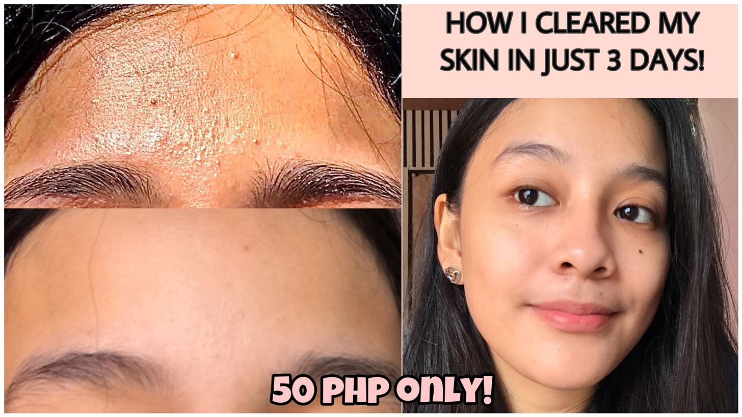 How to Remove Tiny Bumps on Face/Forehead