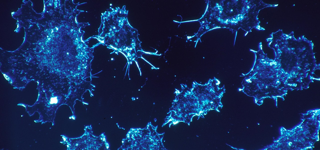 Dying Cells Do Tell Tales & What We Learn Can Help Us Stop Cancer from Spreading