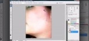 Remove acne and severe blemishes in Photoshop