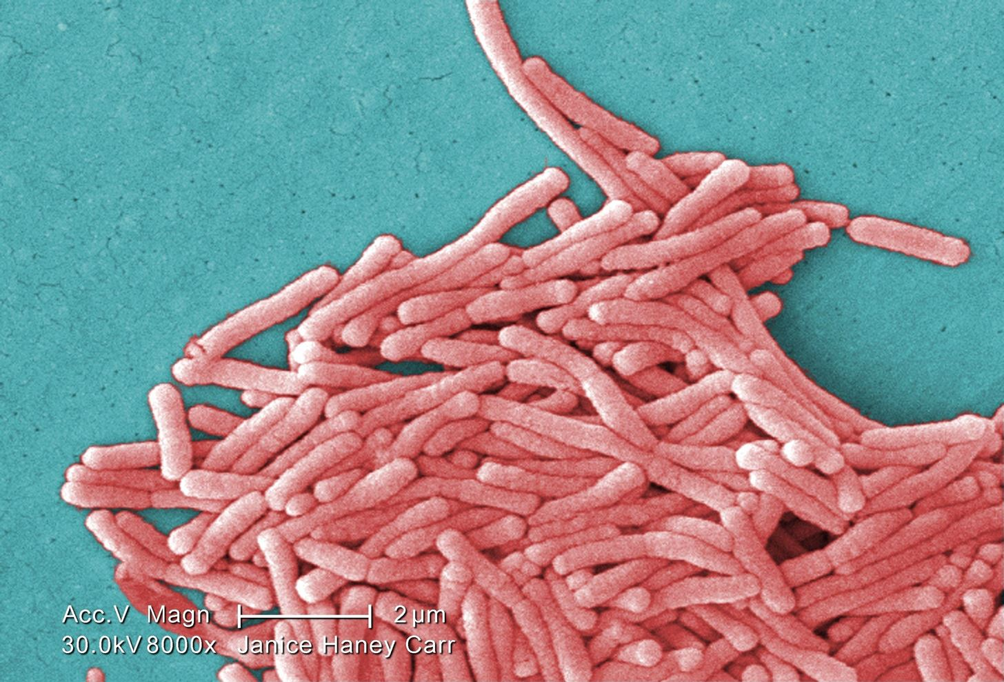 New Study Says Stopping Slimy Biofilms Could Save Thousands a Year from Legionnaires' Disease