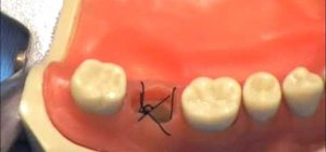 Tie a figure eight suture in someone's mouth