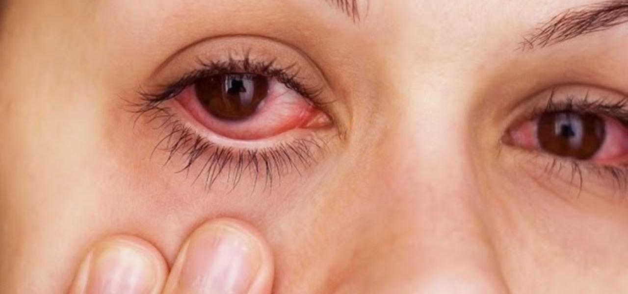 Как снять отеки с глаз после запоя