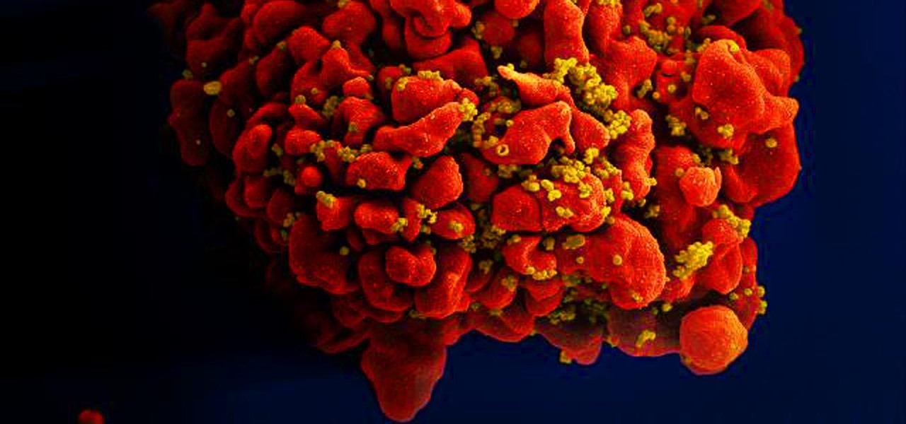 Researchers May Be Closing in on a Vaccine Against HIV