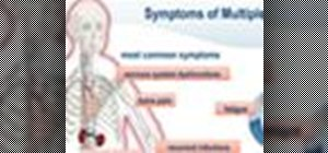 Treat & live with Multiple Myeloma