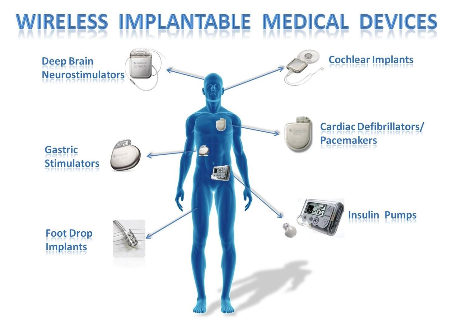 Is Hacking Implanted Medical Devices the Next Big Cyber Crime?