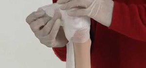 Stop severe bleeding (British Red Cross)