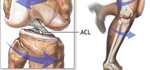 Why is ACL Injury More Common in Female Athletes?