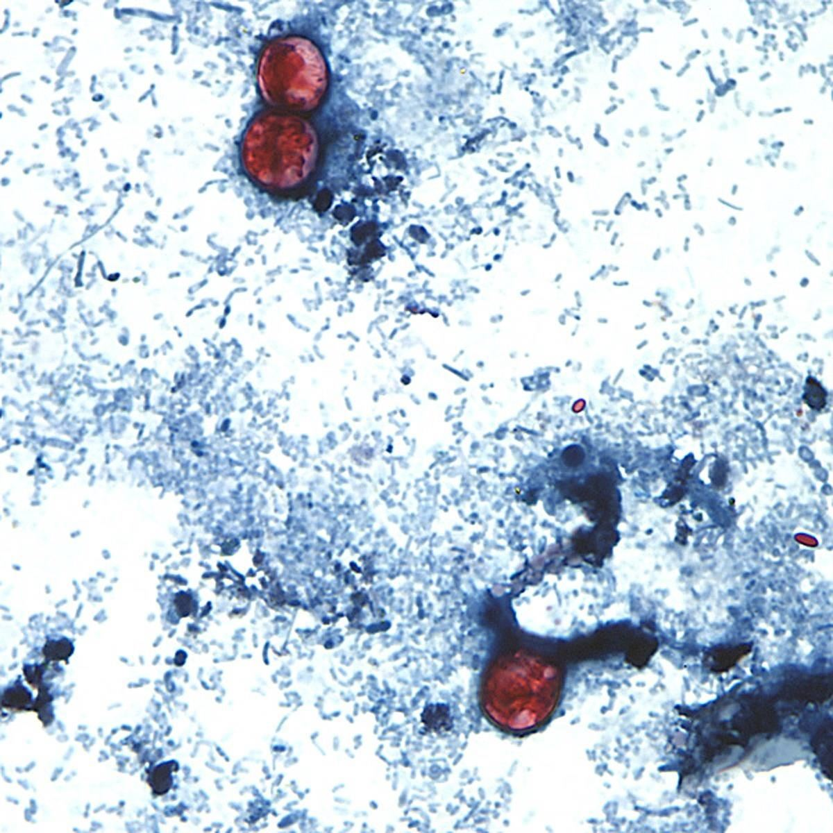 CDC Warns About a Big Spike in Cyclospora Infections — Here's What That Is & How to Avoid It