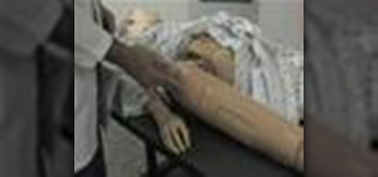 Remove a Femoral Arterial/Venous Sheath in Nursing