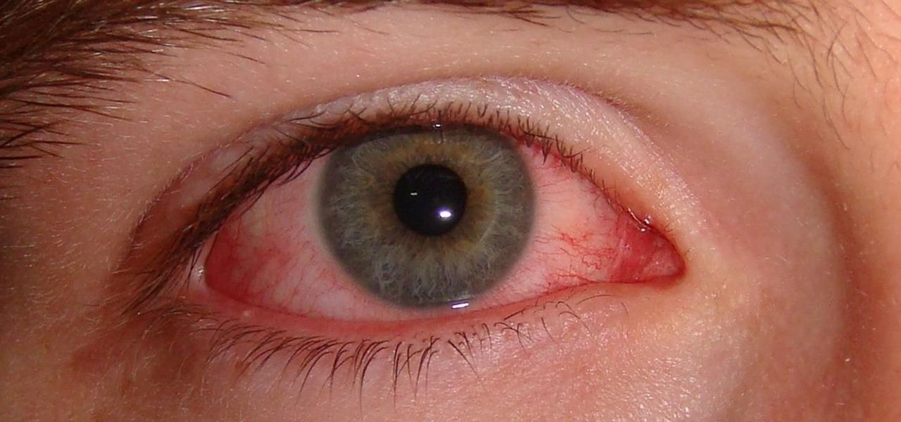 You Don't Need Antibiotics for Pink Eye