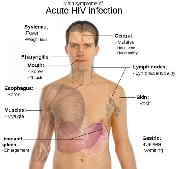 HIV AIDS Sympto... Hiv Aids Symptoms