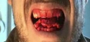 Prank a friend with blood oozing gum