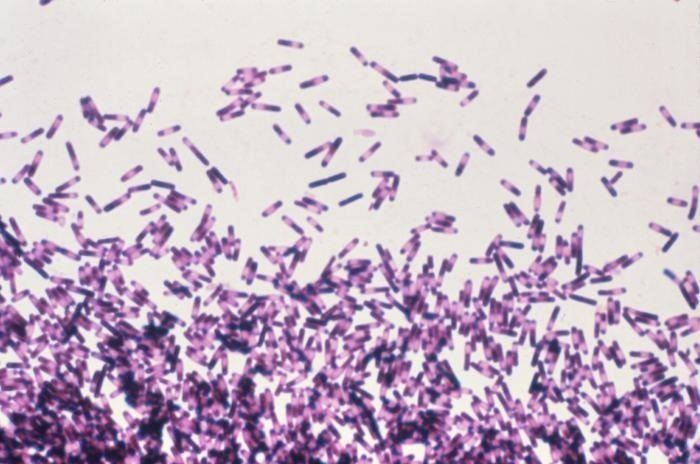 Fecal Transplants to Cure Infections—A Modern Take on a 1,700-Year-Old Idea