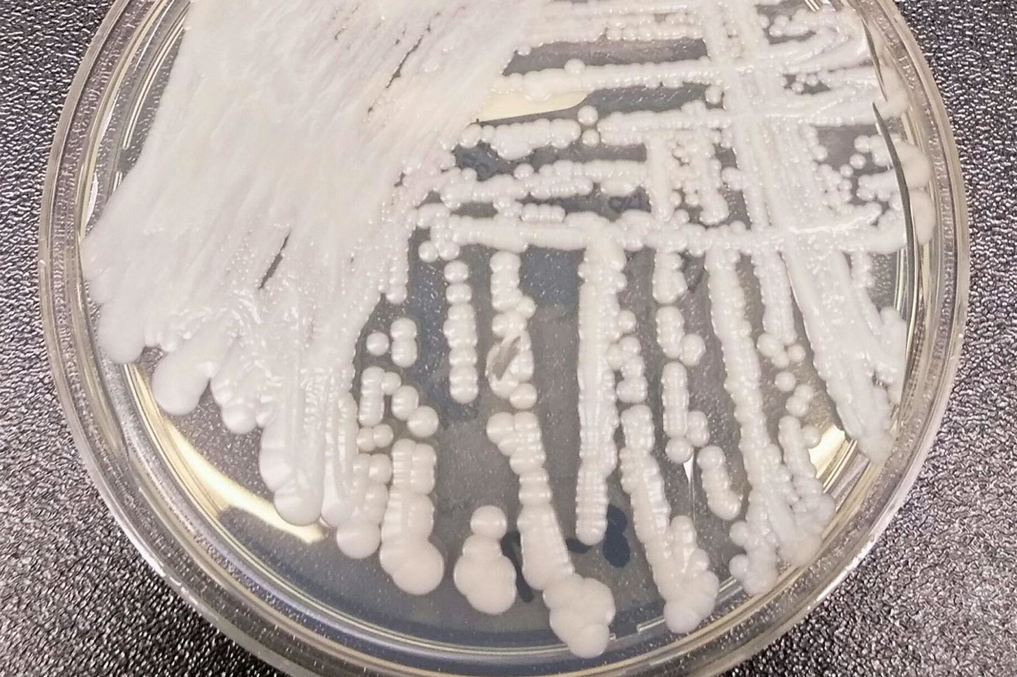 Fungal Superbug Strikes Again, Hits NYC & JC Hospitals Hard