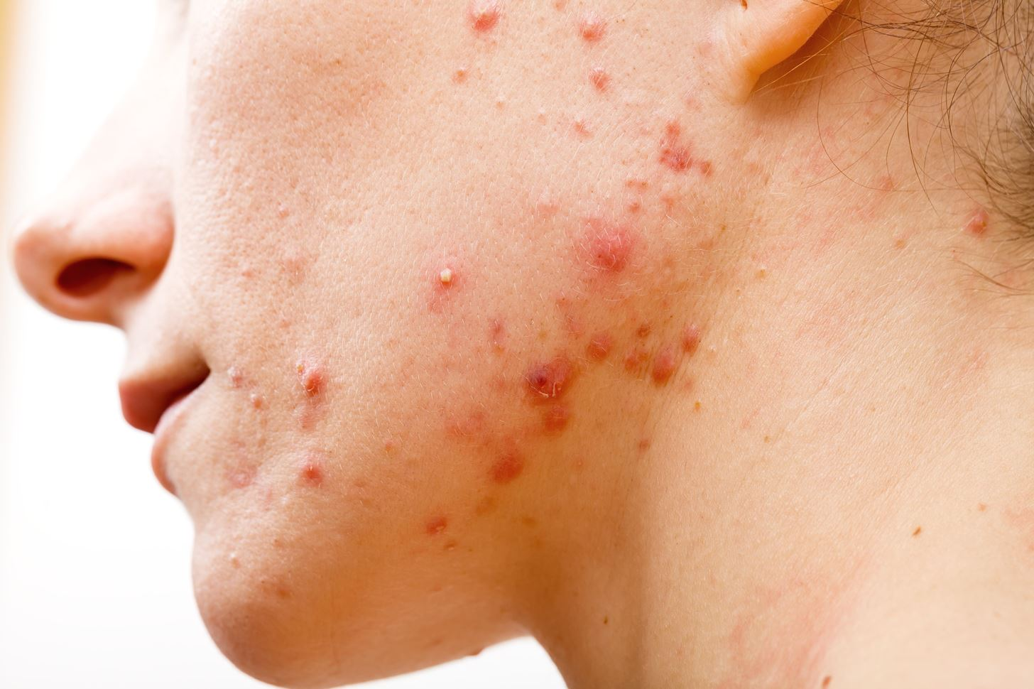 Frustrated by Acne? New Research Shows Skin Microbiome Makes a Difference