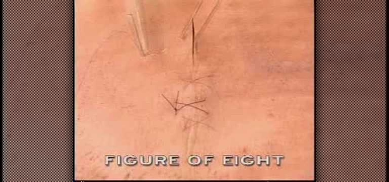 How To Perform A Figure 8 Suture During Surgery 171 First Aid