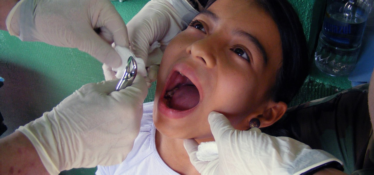 Microbes to Blame for Serious Dental Issues in People with Diabetes & Metabolic Diseases