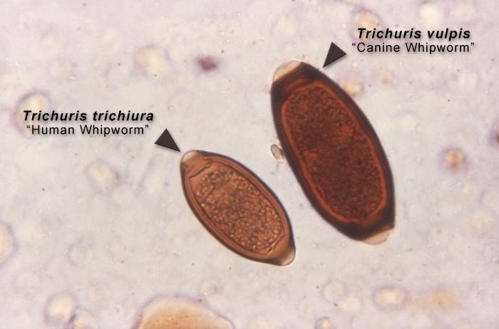 A New Compound Kills the Growth-Stunting Whipworm Parasite That Infects Half a Billion People